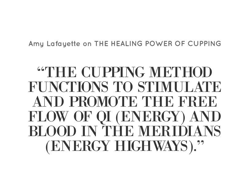 Cupping-Featured1