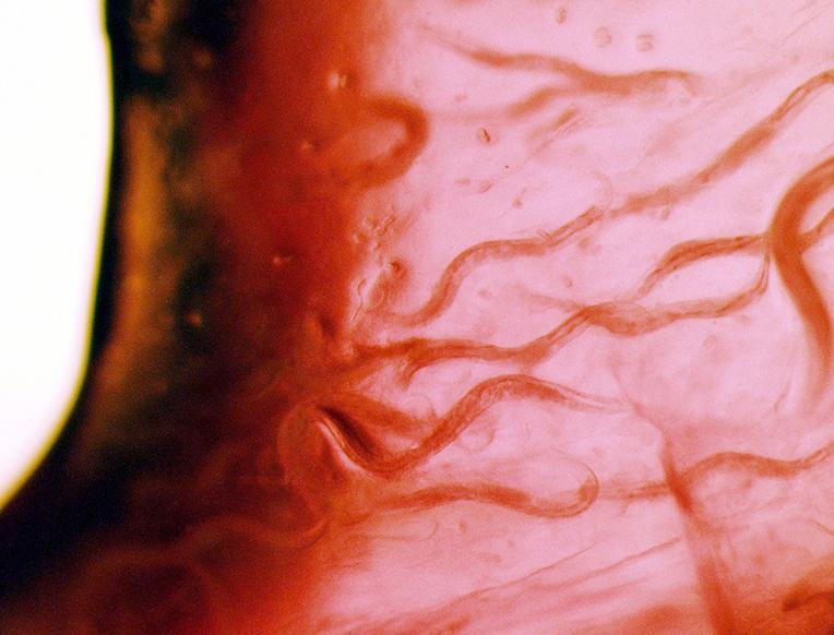 A Tiny Tweak to Gut Bacteria Can Extend an Animal's Life