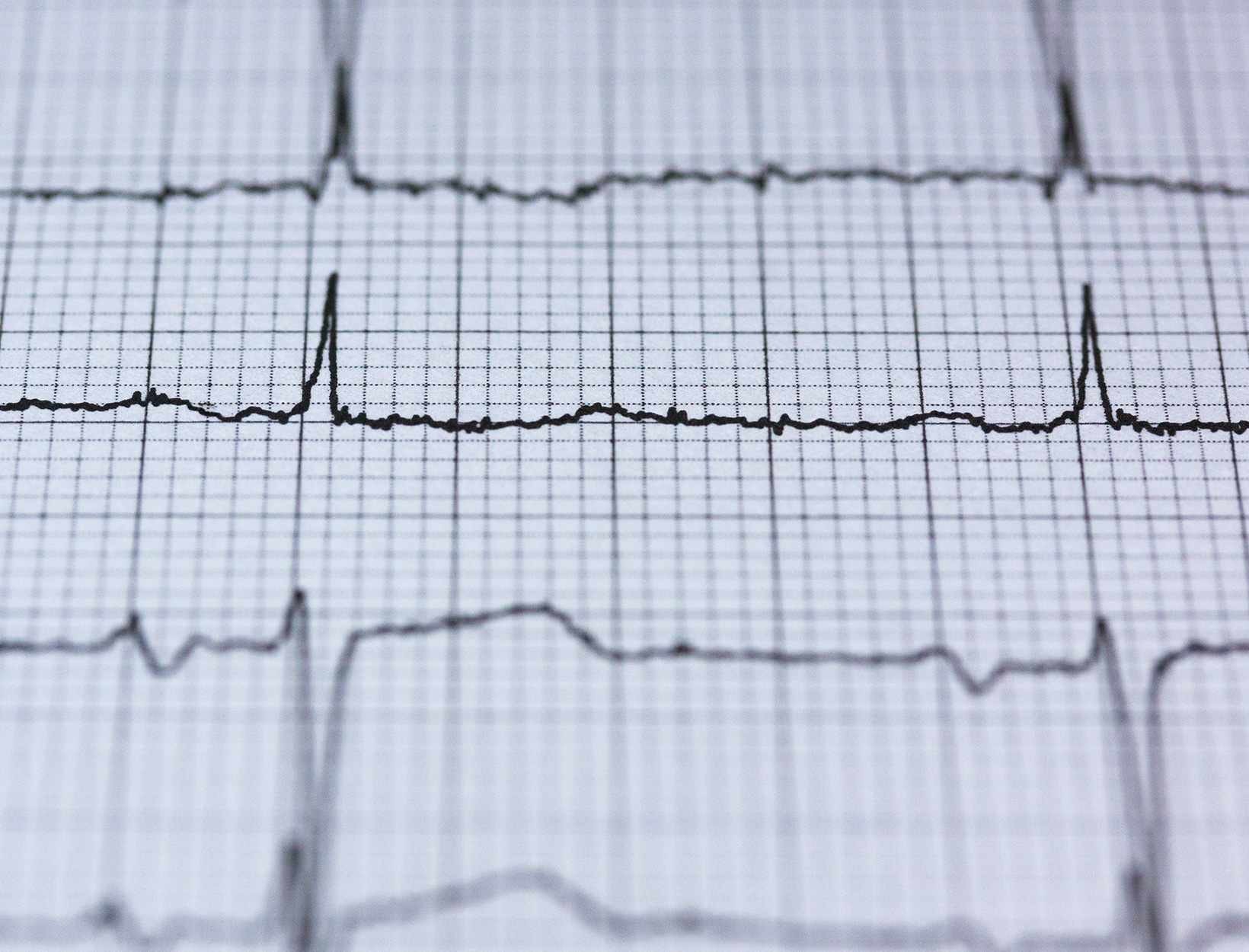 A 'Game Changer' for Patients With Irregular Heart Rhythm