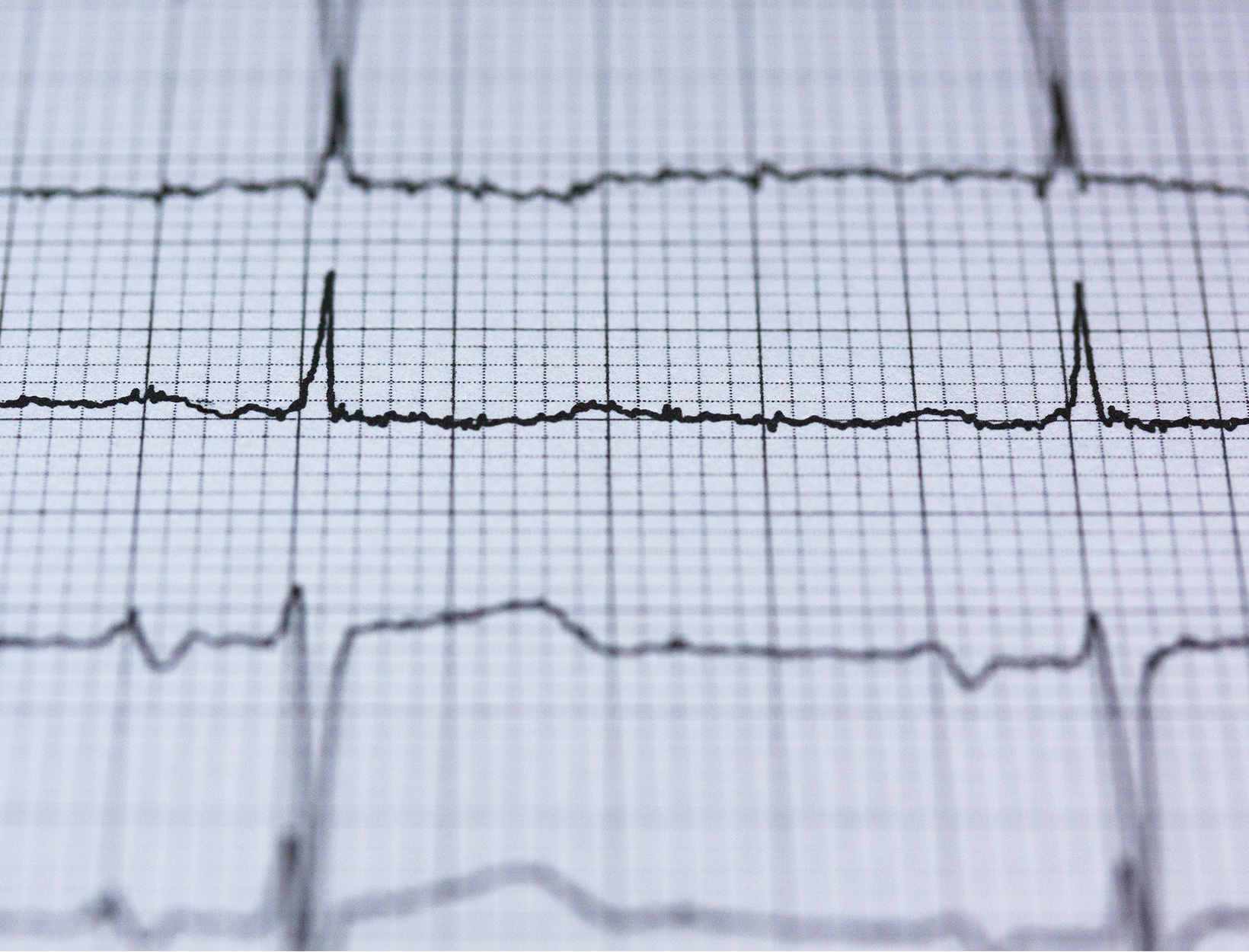 Scientists Discover a Bone-Deep Risk for Heart Disease