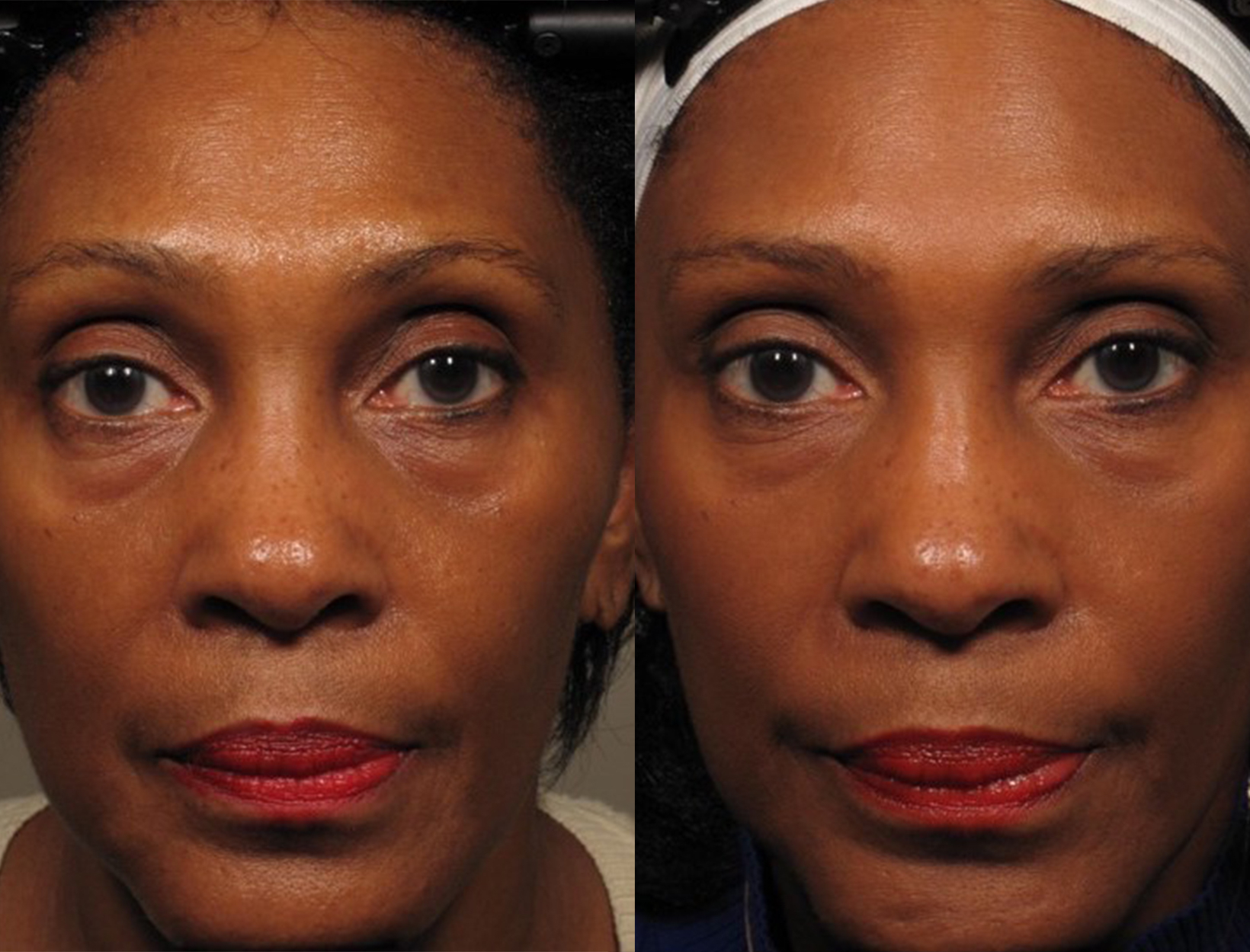 Will facial exercises improve skin tone