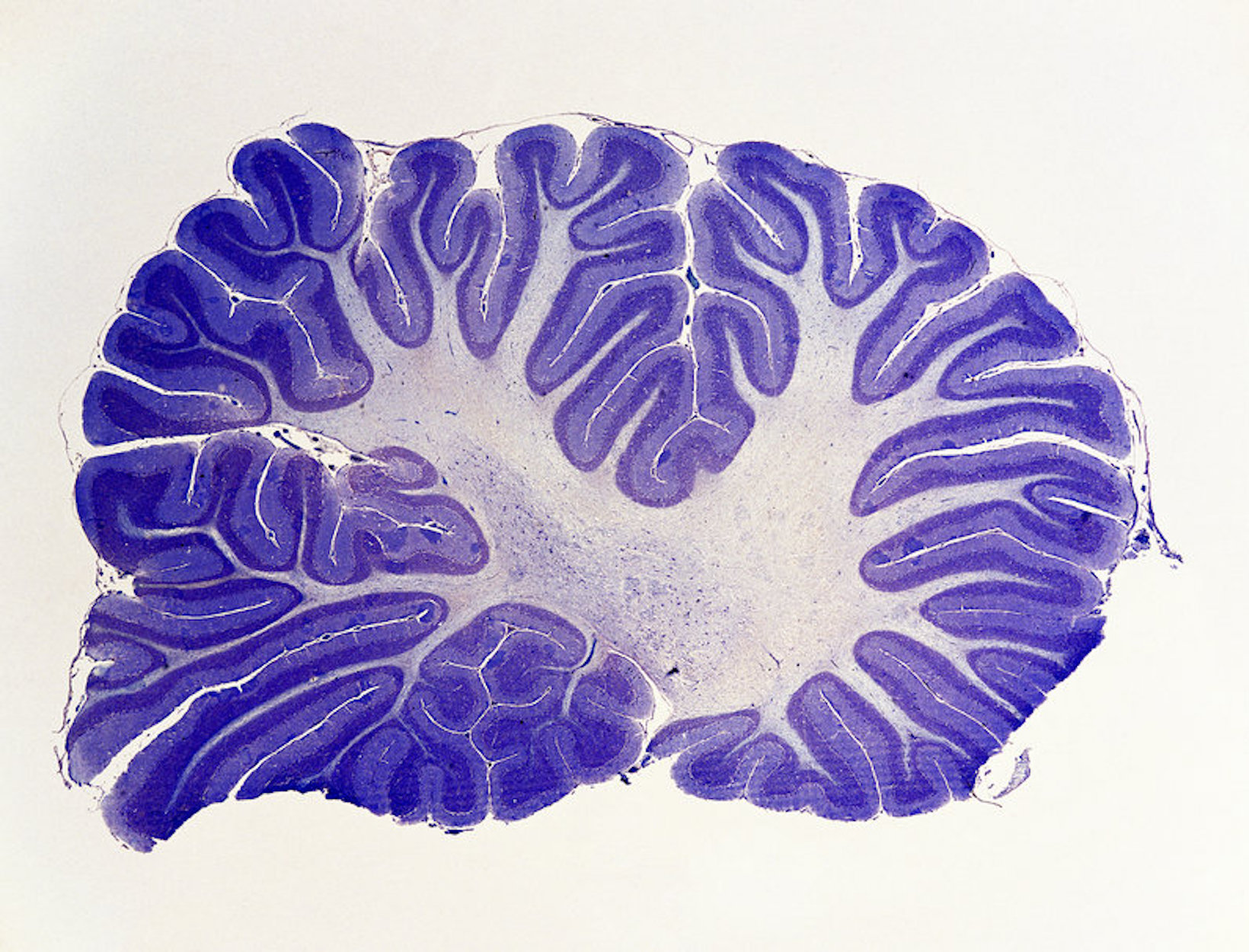 The Underestimated Cerebellum Gains New Respect from Brain Scientists