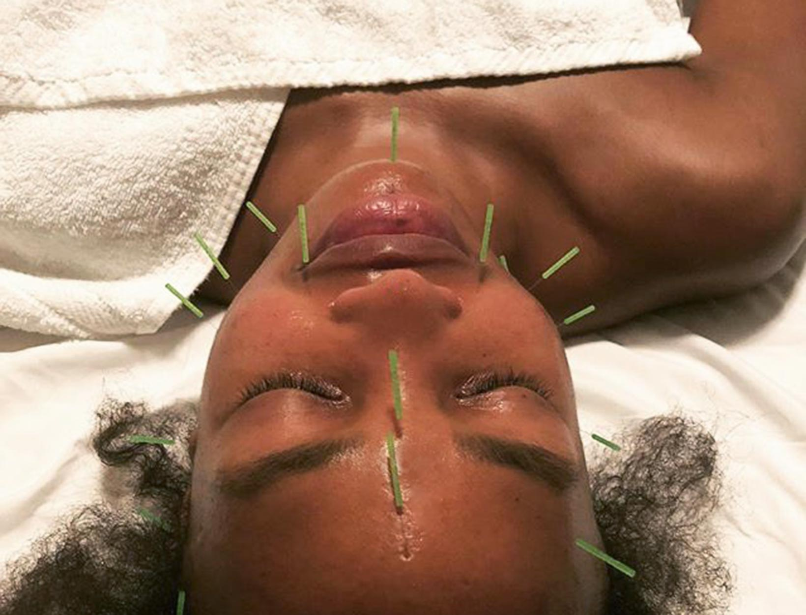 An Acupuncture Facial for Better Skin